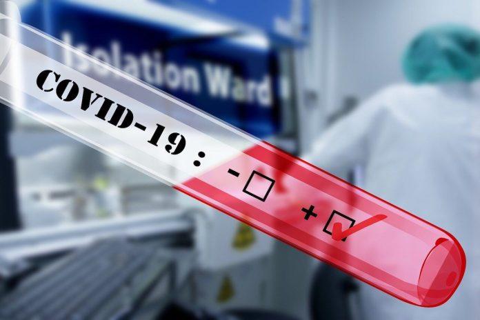ISS e AIFA comunicano i risultati di uno studio su una terapia contro il Covid